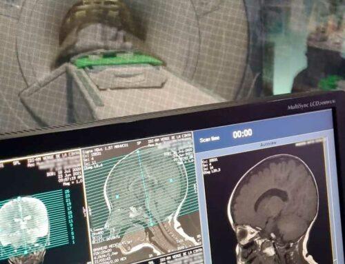 L'Hospital de Tortosa implanta la sedació en les ressonàncies amb infants