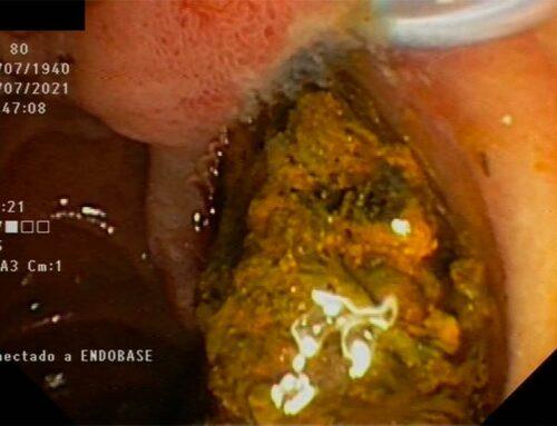 L'Hospital de Tortosa Verge de la Cinta realitza la seva primera litotrícia intracoledocal