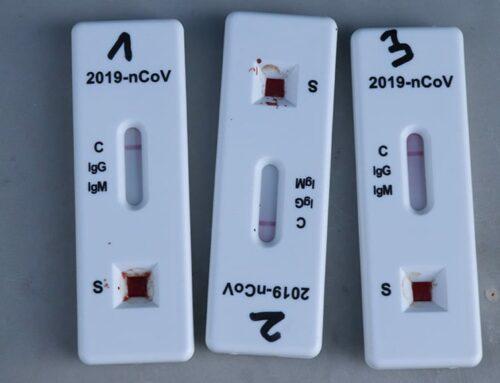 El govern espanyol aprova la venda de test d'antígens a les farmàcies sense recepta